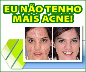 Derminax - acne